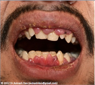 Gingival hypertrophy in a patient of acute biphenotypic leukemia