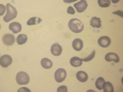 Sickle Cell 100X - IMG_0538