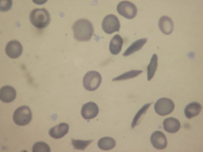 Sickle Cell 100X - IMG_0540