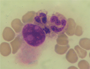 Figure 2. A breast cancer cell with two neutrophils
