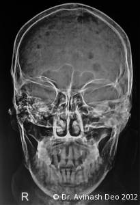 Multiple Myeloma Involvement Of Tibia And Fibula All
