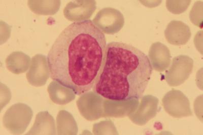 Myelocyte and Metamyelocyte