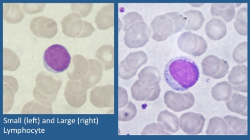 Lymphocytes