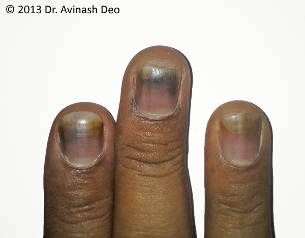 Chemotherapy Induced Nail Changes